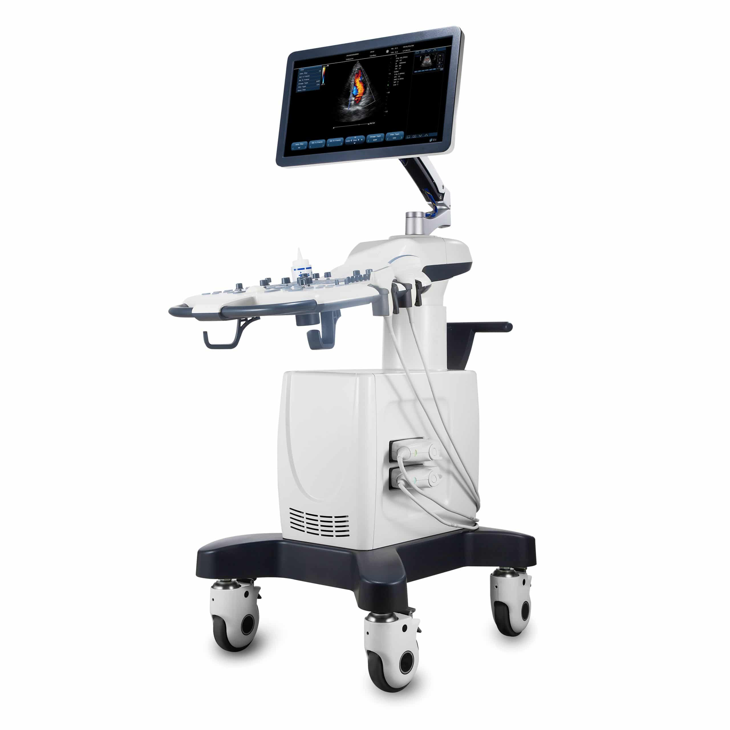 Mobile Ultrasound Machine